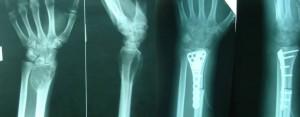ГКО лучевой кости до и после резекции, пластики малоберцовой костью, остеосинтез металлической пластиной