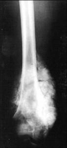 Пароссальная Остеосаркома бедренной кости, Пароссальная, Остеосаркома