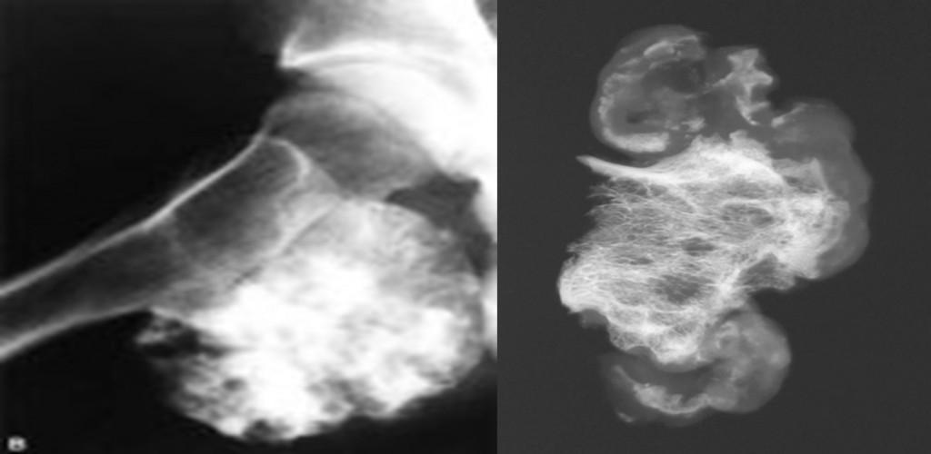 екзостоз, остеохондрома на кт, экзостоз на нижней части пяточной кости, стоимость операции остеохондрома, остеохондрома стопы, остеохондрома ключицы, остеохондрома плечевой кости кт, остеохондрома бедренной кости, (хондрома, остеома, остеохондрома,ребер снимки, остеохондрома клиники в киеве, осмеохондрома, остеохондрома симптомы, экзостоз, что такое остеохондрома основной фаланги пальца стопы, остеохондрома симптомы,