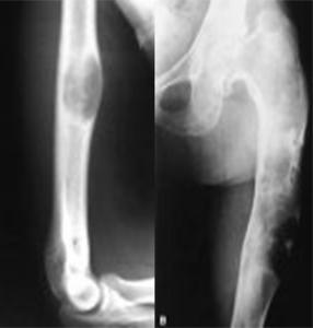 Фиброзная дисплазия плеча бедра