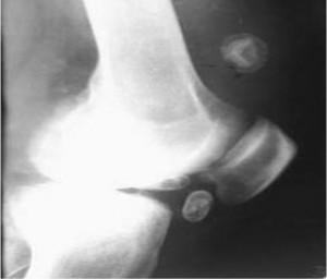 Хондроматозные тела в суставе болит локтевой сустав при сгибании и разгибании