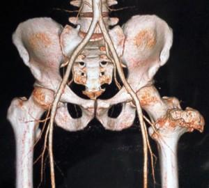 Остеохондрома бедренной кости