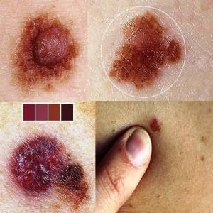 Пігментні пухлини шкіри (невуси і меланома)